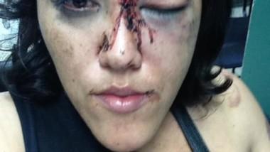 Por defender a su amiga la golpea el marido
