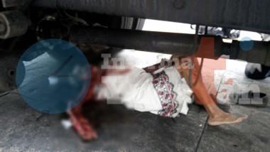 Camión del Ayuntamiento atropella a una abuelita y le destroza el brazo    (VIDEO)
